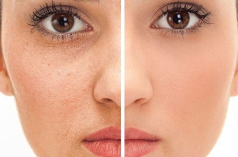 Zażegnaj problem przebarwień na twarzy